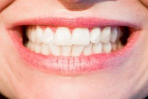 thanks-to-taipei-invisalign-correction-ptt-recommendation-bifeng-dentist